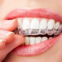brisbane teeth whitening